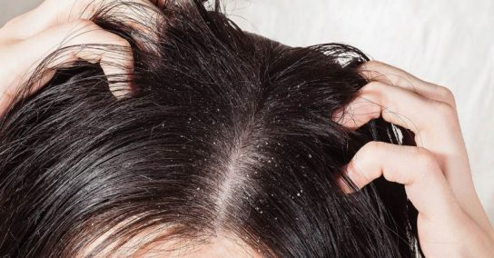 10-Effective-Ways-To-Get-Rid-Of-Dandruff-Naturally-1-770x402